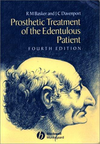 Prosthetic treatment of the edentulous patient by